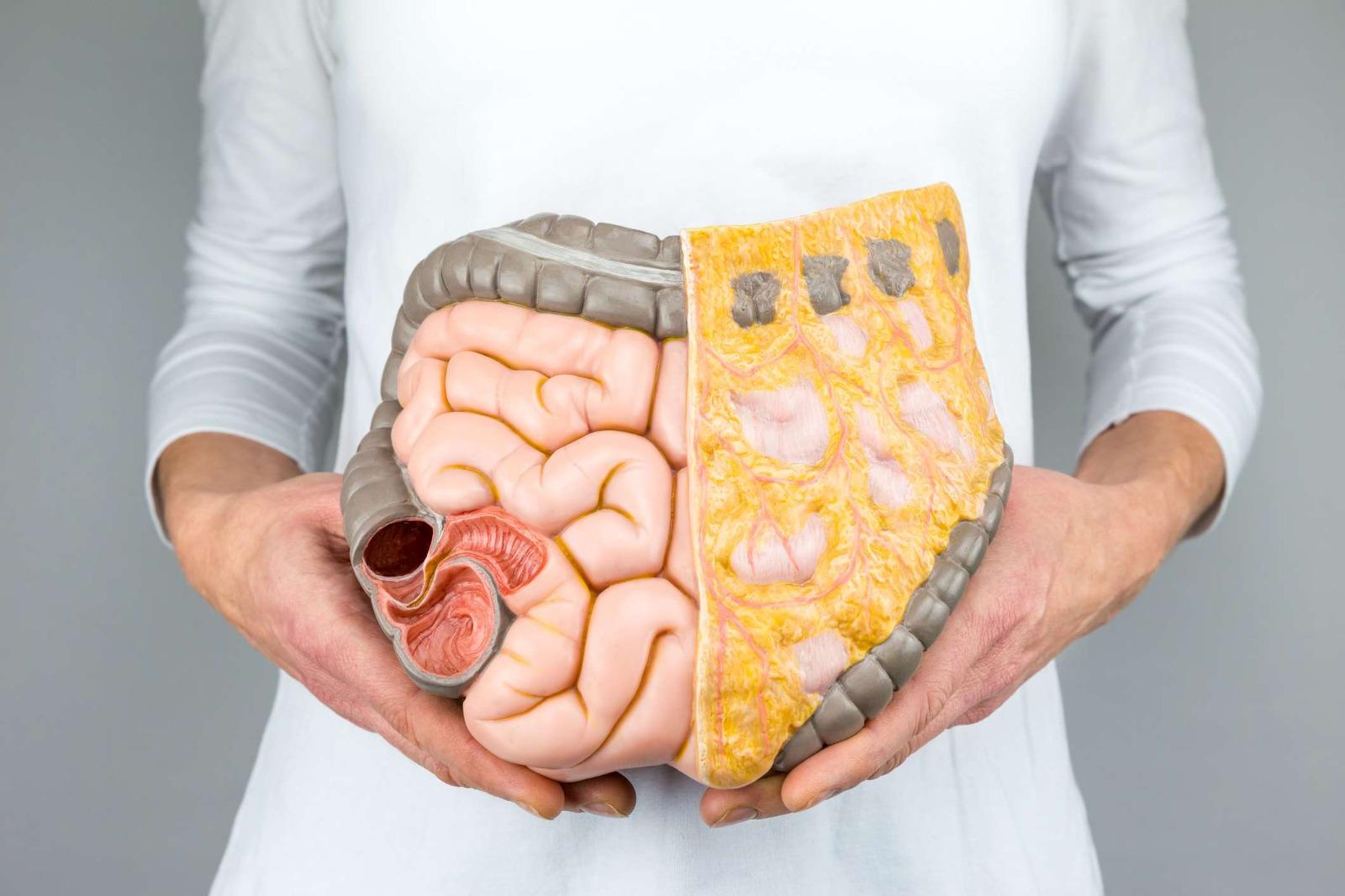 潰瘍性結腸炎