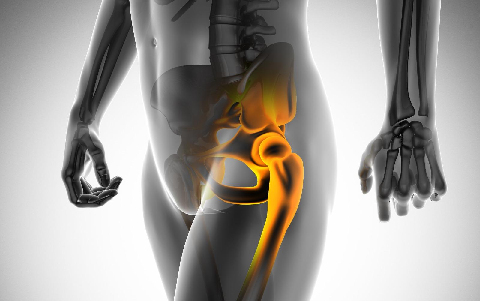 不明「屁股痛」 小心患上髖關節炎